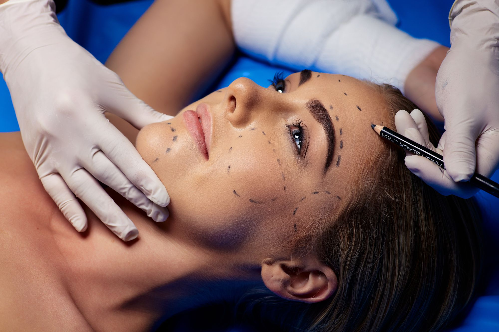 Plastic Surgery Trends of Millennials