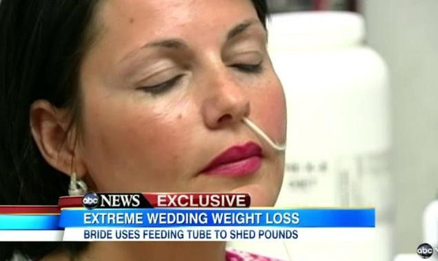 Feeding tube diet